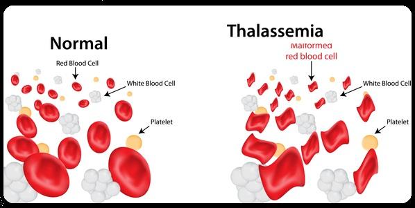 Pengertian Penyakit Thalassemia : Gejala, Penyebab, dan Cara Mengobati Thalassemia